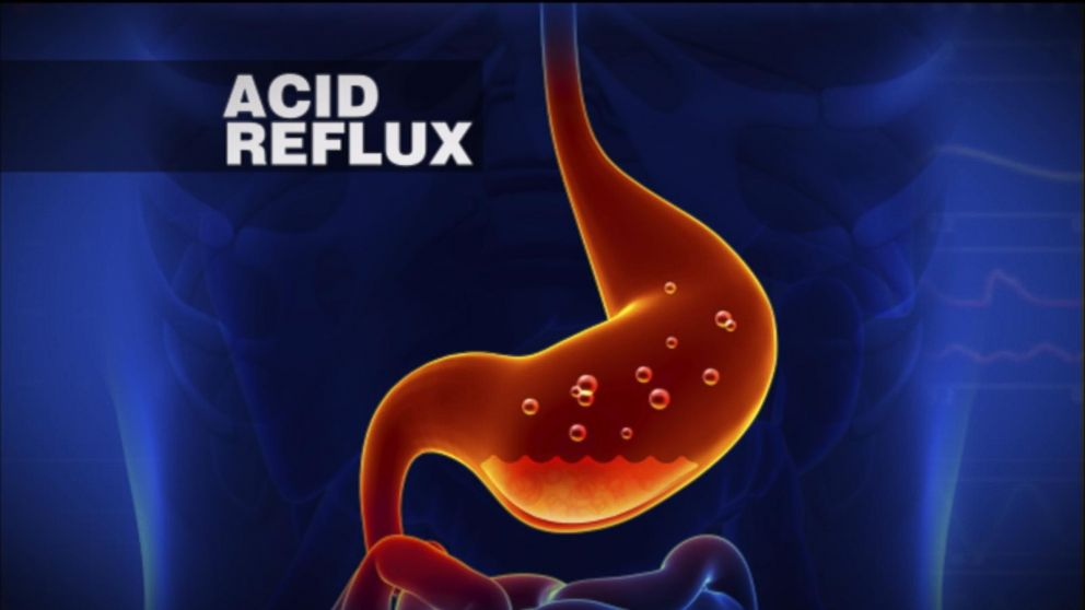 6 Steps to Reverse Acid Reflux